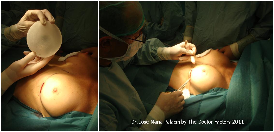 Cuando es necesario cambiar implanty los pechos